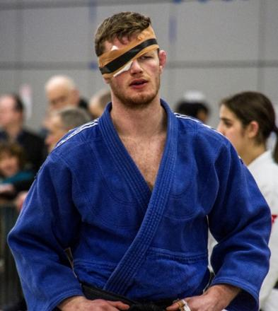 Michael Horley was forced to wear an eye patch after an opponent accidentally poked him in the eye during the British National Judo Championships